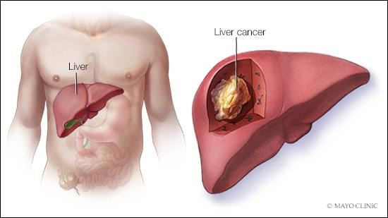 a-medical-illustration-of-liver-cancer-16X9