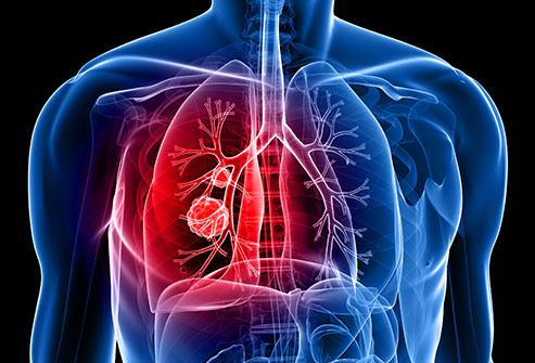 493ss_thinkstock_rf_lung_cancer_illustration