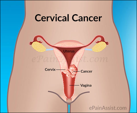 cervical-cancer-curable