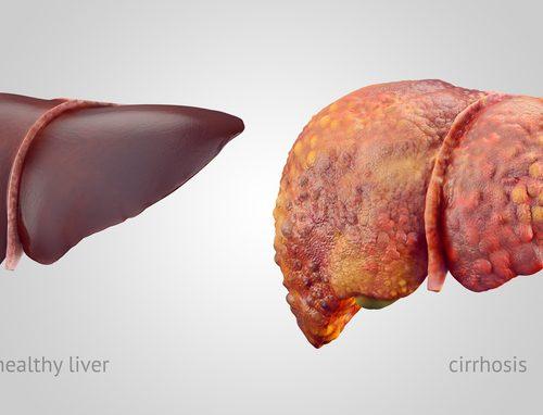 liver-cirrhosis-500x382